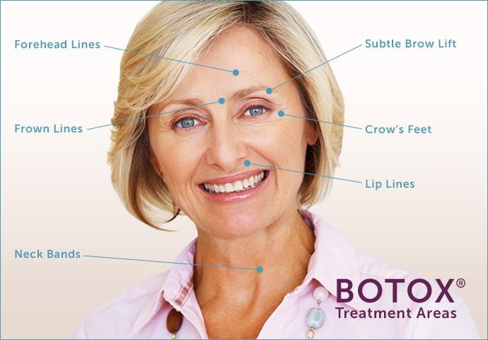 eyebrow lift diagram botox boston | botox injections danvers ma | injectables