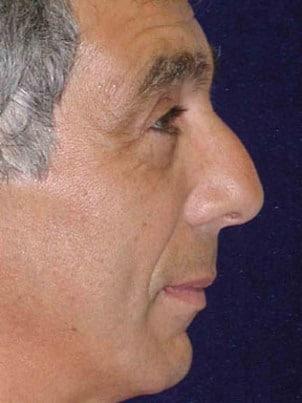 Rhinoplasty Boston | Nose Surgery Danvers MA