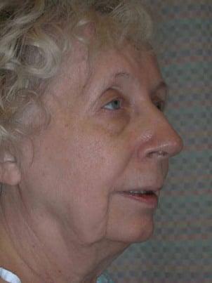facelift   mini facelift   facelift surgery boston   danvers ma