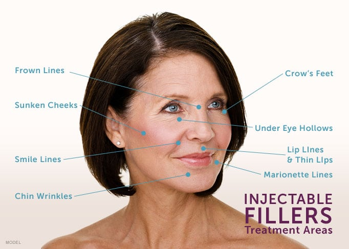 injectable fillers boston ma | Dr. Anna Petroplous