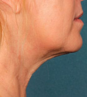 kybella boston ma | Center for Classic Beauty
