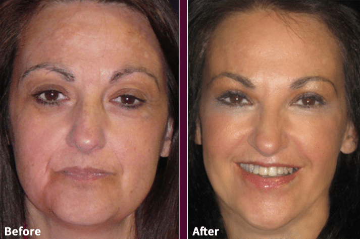 Thermage Before & After
