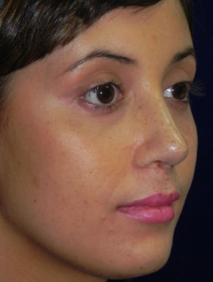 Rhinoplasty Boston | Nose Surgery Danvers MA
