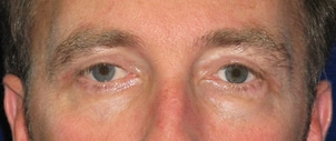 An after image of an man who underwent eyelid surgery, performed by Dr. Anna Petropoulos in Danvers, MA.