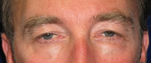 A before image of an man who underwent eyelid surgery, performed by Dr. Anna Petropoulos in Danvers, MA.