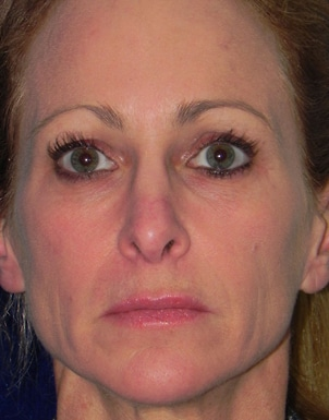 Injectable Fillers Case 2
