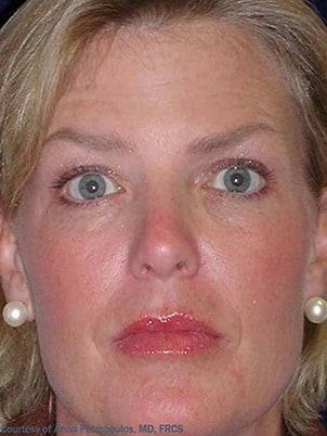 Botox 2