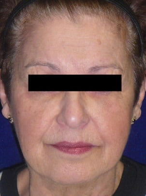 Case 7 injectables