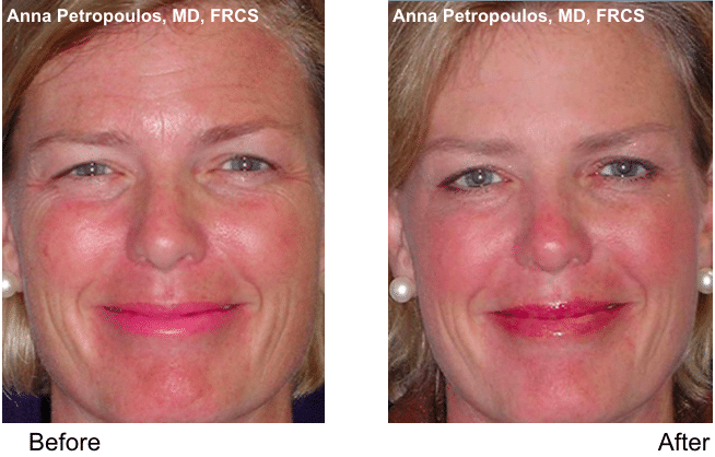 Botox Before and After Danvers MA