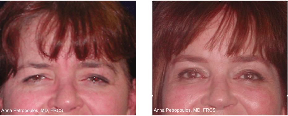 Brow Lift Before and After Danvers MA
