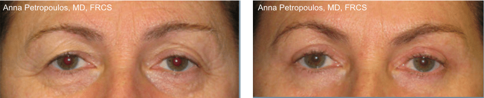 Eye Lift Before and After Danvers MA