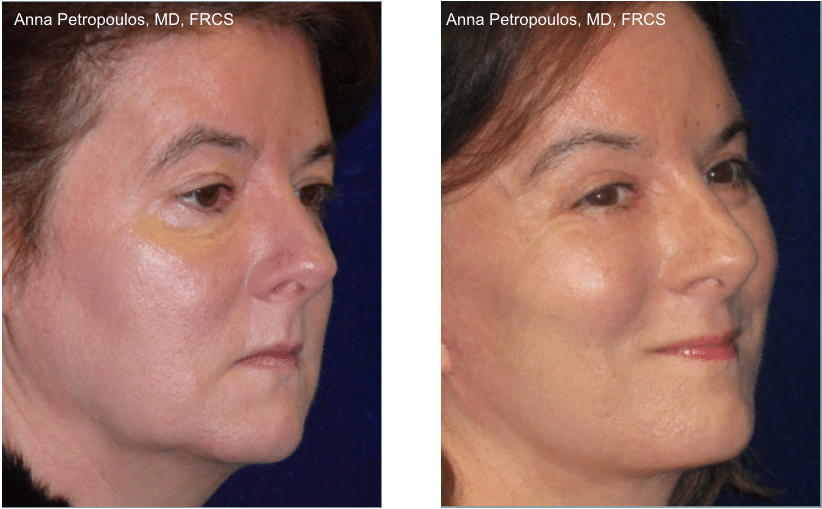 Facelift Before and After Danvers MA