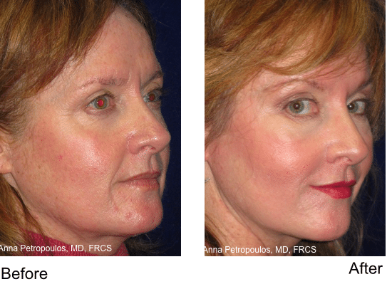 Liquid Facelift Danvers MA