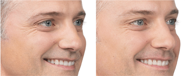 Male Botox Before and After Danvers MA