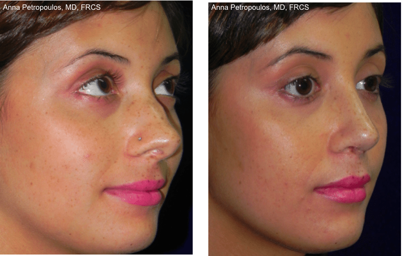 Rhinoplasty Before and After Danvers MA