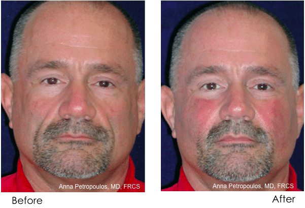 Sculptra Before and After Danvers MA