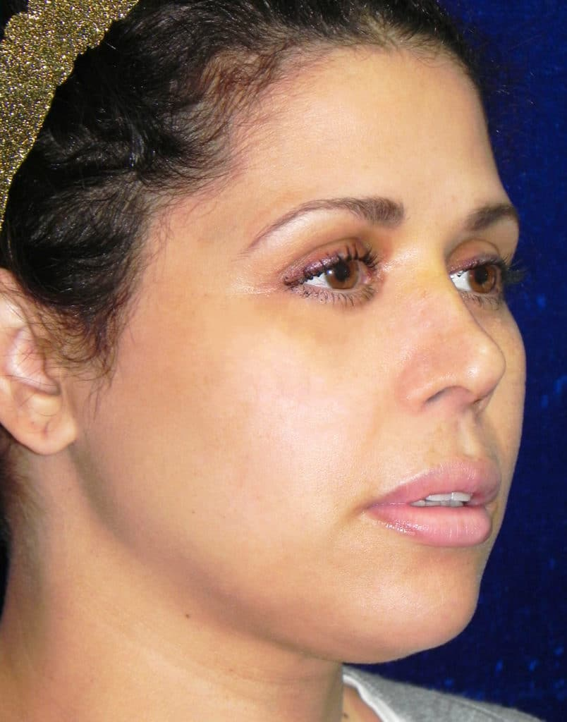 Rhinoplasty Before and After Boston MA