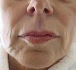 Liquid Facelift Before and After Danvers MA