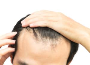 SmartGraft Hair Transplantation Boston, MA