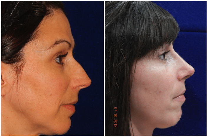 Rhinoplasty patient before & after photos boston