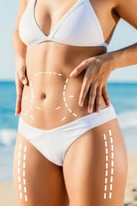 Smartlipo® Danvers, MA | Body Contouring Boston, MA