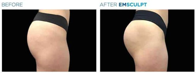 Emsculpt before and after - buttock