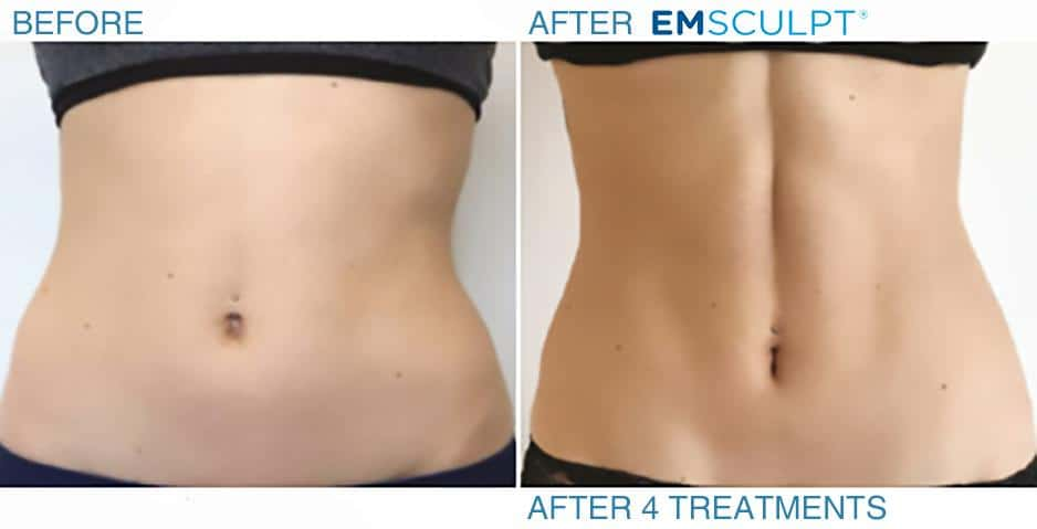 Emsculpt before and after - tummy